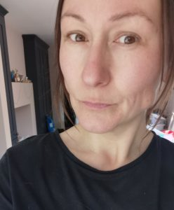 lucy baker after muscles relxant injections for bruxism botox for teeth grinding
